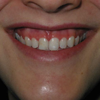 Gummy Smiles