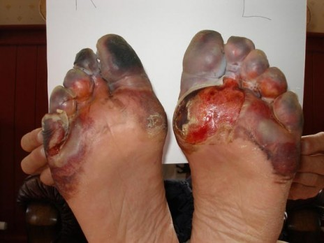 Know when your feet gets numb?